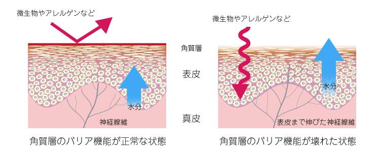 バリア機能の損傷